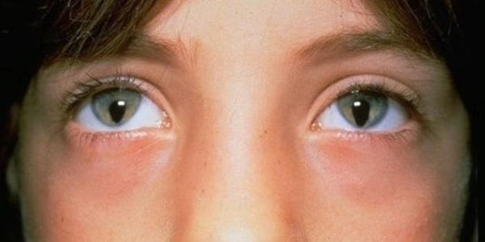 couleur-des-yeux-en-biologie-colobome-oculaire-lepangolincom