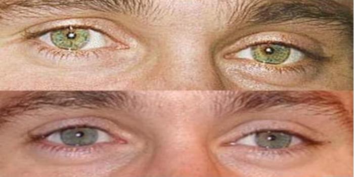 couleur-des-yeux-en-biologie-exemple-eclairage-lepangolincom
